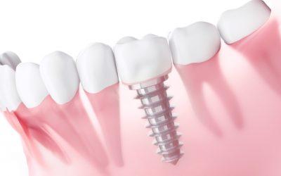 ¿Cuánto tiempo duran los implantes?